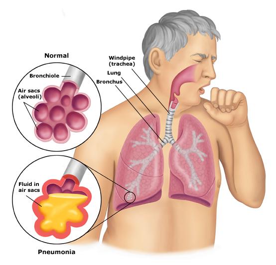 Obat Infeksi Pernafasan (ISPA),  Alami Di Apotik 100 % Original